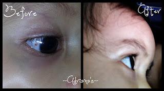 Bercak Merah Pada Mata Bayi