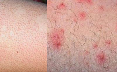 Các bệnh ngoài da thương gặp khi mùa hè
