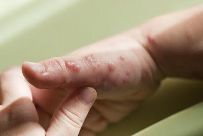 cara-mengobati-herpes