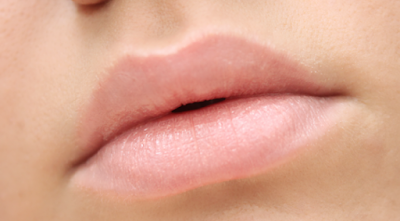 bibir kering teramat