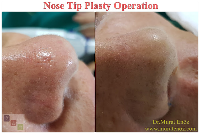 Ideal sleeping position after nose tip plasty operation - How to sleep after nose operation? - How to sleep after nose surgery? - Lying down after aesthetic nose surgery - Sleeping position after nose aesthetics  - Sleep position after nose tip plasty operation - Sleep position after rhinoplasty - How to sleep after nose job