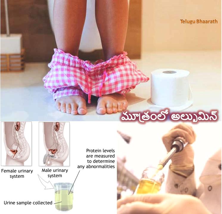 Albumin-in-Urine-mootra-vyadulu-chikists
