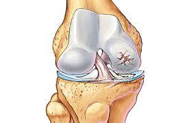 Obat Penyakit Tulang (Osteoarthritis)