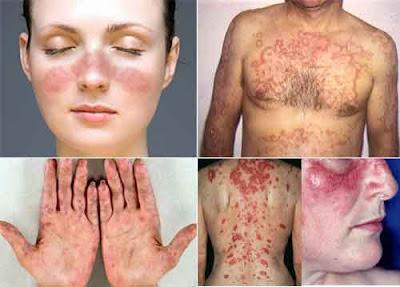 obat lupus