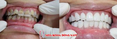 bọc răng sứ có tháo ra được không -6