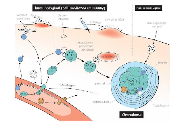 Chronic And Cell-Mediated Inflammation, Granulomas, Granulomatous diseases, Ulcerative colitis