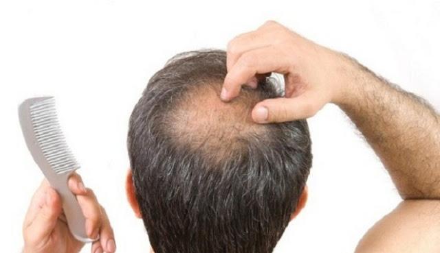 Obat Penumbuh Rambut Botak,obat penumbuh rambut alami,Obat Rambut Botak,Obat Rambut Paling Ampuh,Penumbuh Rambut Terbaik