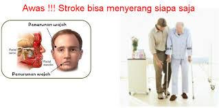 Dampak tekena stroke