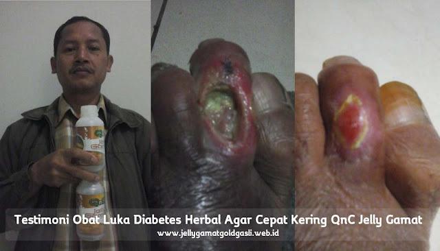 Obat Herbal Diabetes Mellitus Paling Laris dan Murah di Apotik