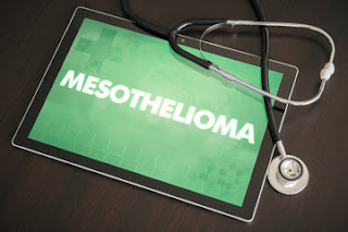 Mesothelioma-causes-Symptoms-Treatment