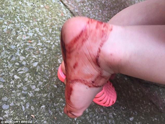 Awas! Luka Mengenaskan Ini Berasal dari Sepatu Sandal Jelly
