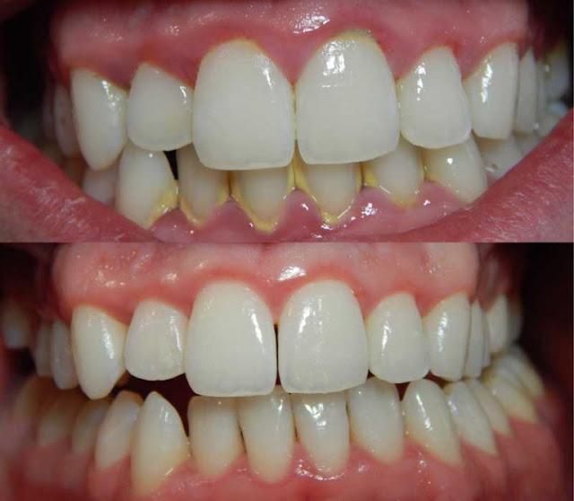 17 Cara Menghilangkan Karang Gigi Tanpa Harus ke Dokter Gigi