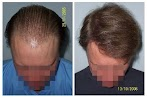 Best Product For Serious Hair Loss - Is It What Believe?