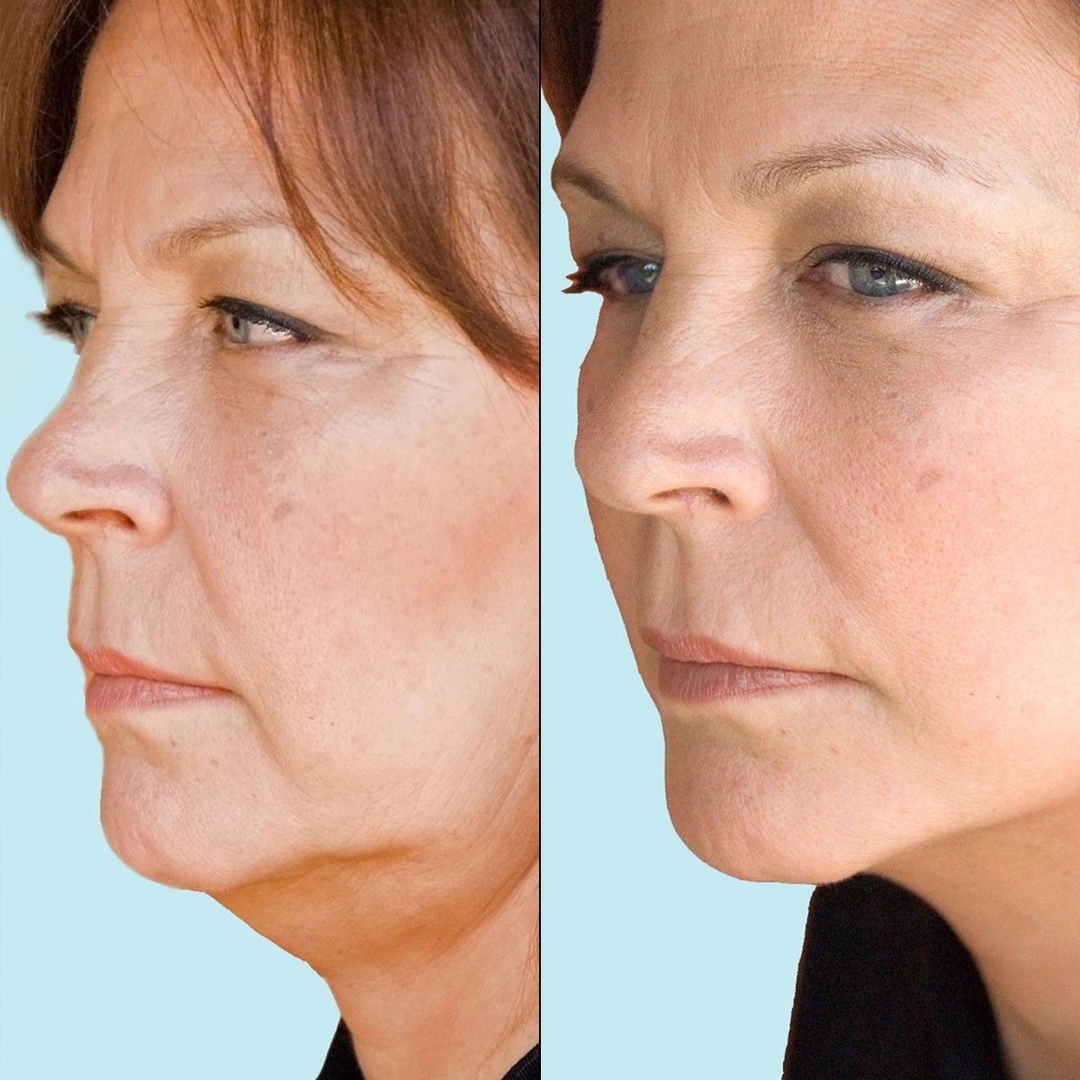 Hardcore non surgical facial wrinkle reduction haired chicks nude