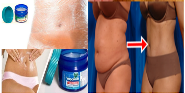 Other Wonderous Uses of Vicks Vaporub You'd Never Thought Would Be Possible