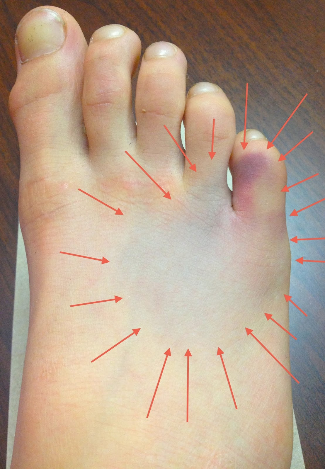 My Running Doc: How Can I Tell if My Foot is Broken?