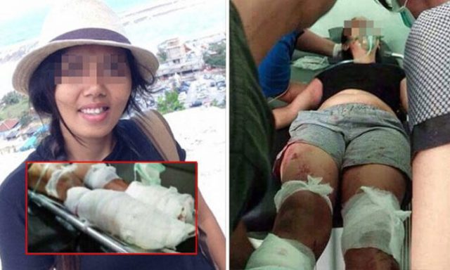 Man Suspects Wife of Cheating and Chops Her Legs Off In Front of Their Two Young Children