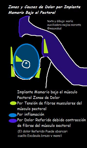 Maniquíes aproximadamente dolor muscular costillas