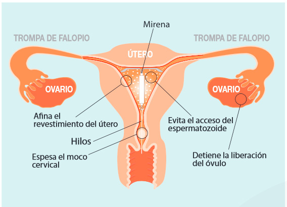 Dispositivo Intrauterino Mirena Pdf