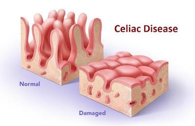 Obat Tradisional Celiac