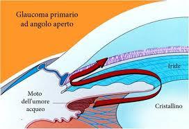 Glaucoma ad angolo aperto