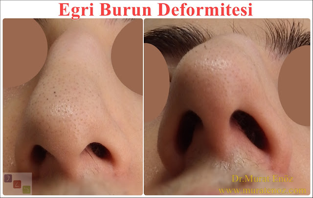 Eğri burun nedenleri - Eğri burun tanımı - Eğri burun estetiği - Eğri burun ameliyatı - Eğri burun tedavisindeki zorluklar - Crooked nose - Deviated nose - Twisted nose - Deflected nose - Asymmetric nose - Scoliotic nose - Eğri burun - C burun - S-shaped crooked nose deformity