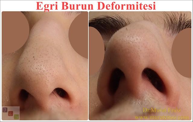 Eğri burun nedenleri - Eğri burun tanımı - Eğri burun estetiği - Eğri burun ameliyatı - Eğri burun tedavisindeki zorluklar - Crooked nose - Deviated nose - Twisted nose - Deflected nose - Asymmetric nose - Scoliotic nose - Eğri burun - C burun - S-shaped crooked nose deformity