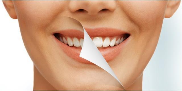 Trik Membuat Gigi Putih Dalam 2 Detik