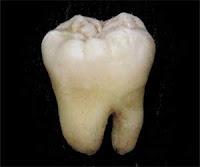 "<Imgsrc =""fosa-sellador-fosa-y-fisura.jpg"" width = ""300"" height ""239"" border = ""0"" alt = ""Superficie irregular de los molares."">"