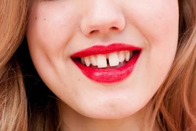 Làm sao để răng hết thưa an toàn, triệt để nhất?