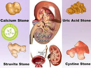 how to eliminate uric acid naturally foods you can eat with high uric acid too much uric acid in urine