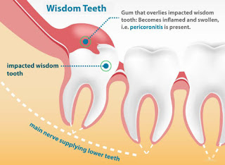 remove wisdom tooth
