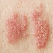 Ramuan Tradisional Yang Mampu Atasi Penyakit Herpes