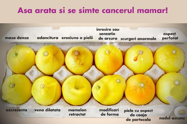 simptome si forme ale cancerului mamar
