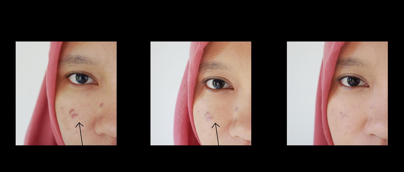 Tampil Natural Dan Tahan Lama Dengan Ultima Ii Delicate Creme Make Spons Bedak Isi 2 Before After Pemakaian Up Translucent Face Powder With Moisturizer