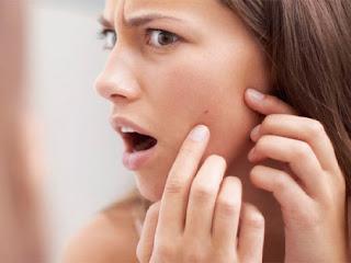 Penyebab Jerawat Timbul Di Beberapa Bagian Wajah