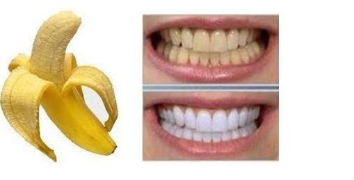 Remedio casero para blanquear los dientes efectivo