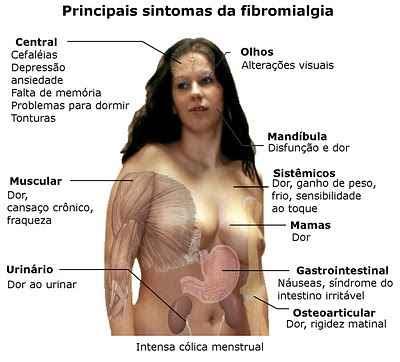 Massagem para Fibromialgia em São José SC - Clínica de Massagem Terapêutica, Massoterapia,  Quiropraxia, Acupuntura (48) 3094-5746 - de segunda a sábado
