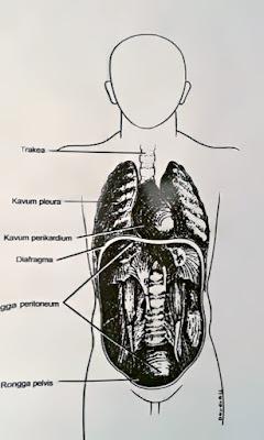 Gambar Penyebab Pneumonia, Komplikasi Dan Cara Penanganan Pneumonia