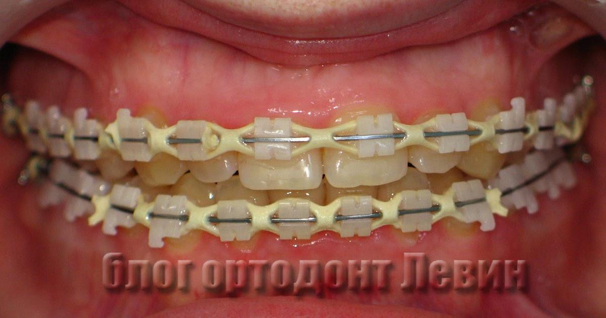 Как часто ходят к ортодонту при брекетах