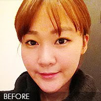 짱이뻐! - Professional Surgeons for Professional Results (Best Korean Face Contouring Specialized Hospital)