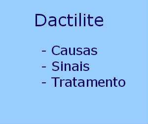 Dactilite causas sintomas tratamento