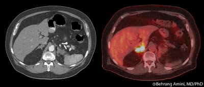 FDG PET/CT showing non-Hodgkin lymphoma involving the adrenal glands
