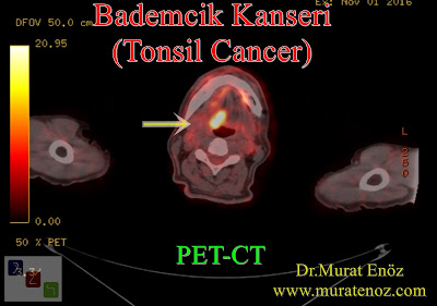 Bademcik kanseri - PET / BT - PET / CT - Tonsil cancer