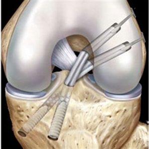 Phẫu thuật tái tạo dây chằng chéo sau phương pháp hai bó