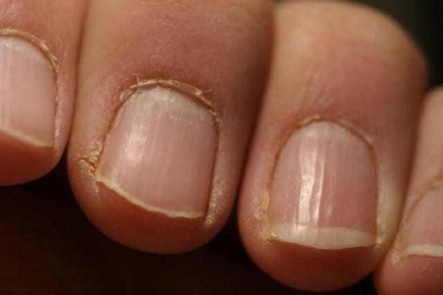 اذا رأيت هذه العلامات على اصابع يدك توجه للطبيب فورا! قد تكون خطيرة جدا...