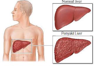 Cara Mengobati Penyakit Liver Menggunakan Obat Sakit Liver Alami
