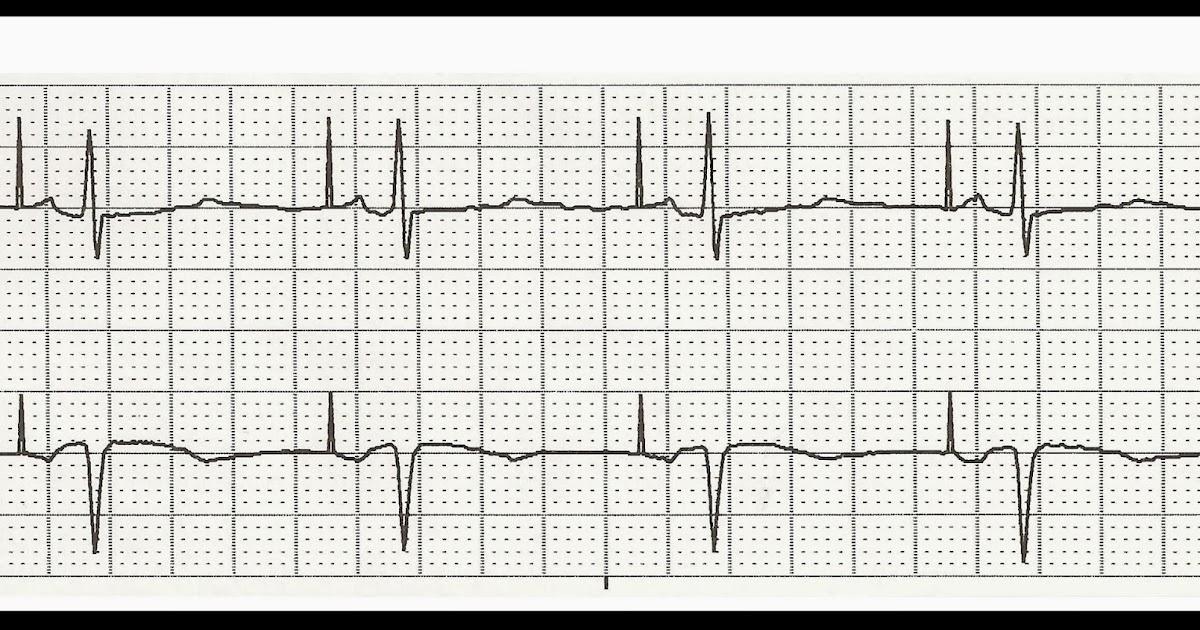 Float Nurse: EKG Rhythm Strip Quiz 210