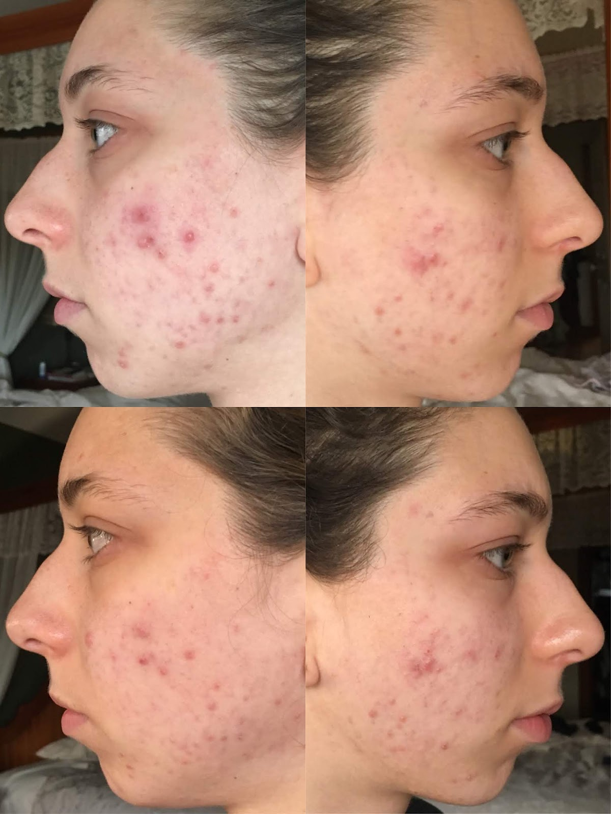 Can Aloe Vera Clear Hormonal Acne/Scars in 1 Week?   The