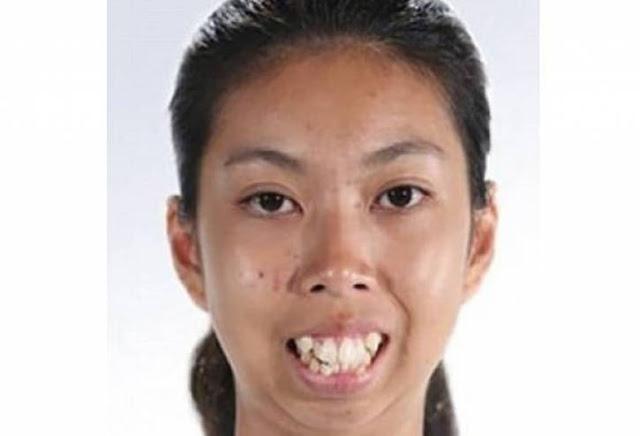 عملية تجميل واحدة في وجهها غيرت شكلها تماماً لن تصدقوا كيف أصبح شكلها